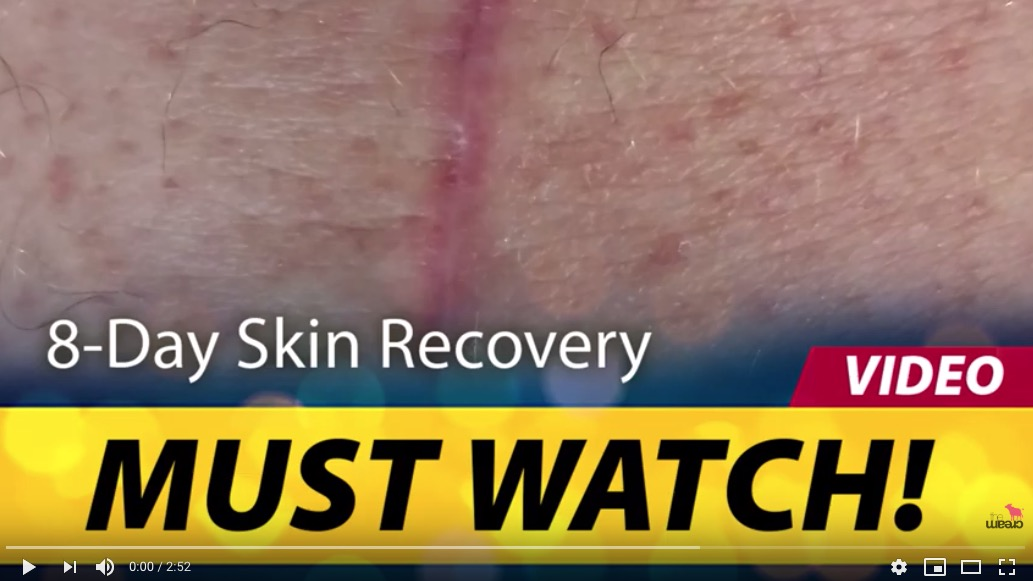 MUST WATCH! 8-Day Skin Recovery after surgery using Colostrum!